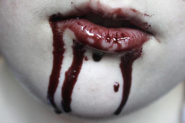 Bloody by lynx48