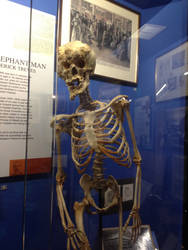 The Skeleton of Joseph Merrick The Elephant Man by WorldofTIMZ