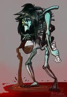 Harry The Zombie by Mad--Munchkin