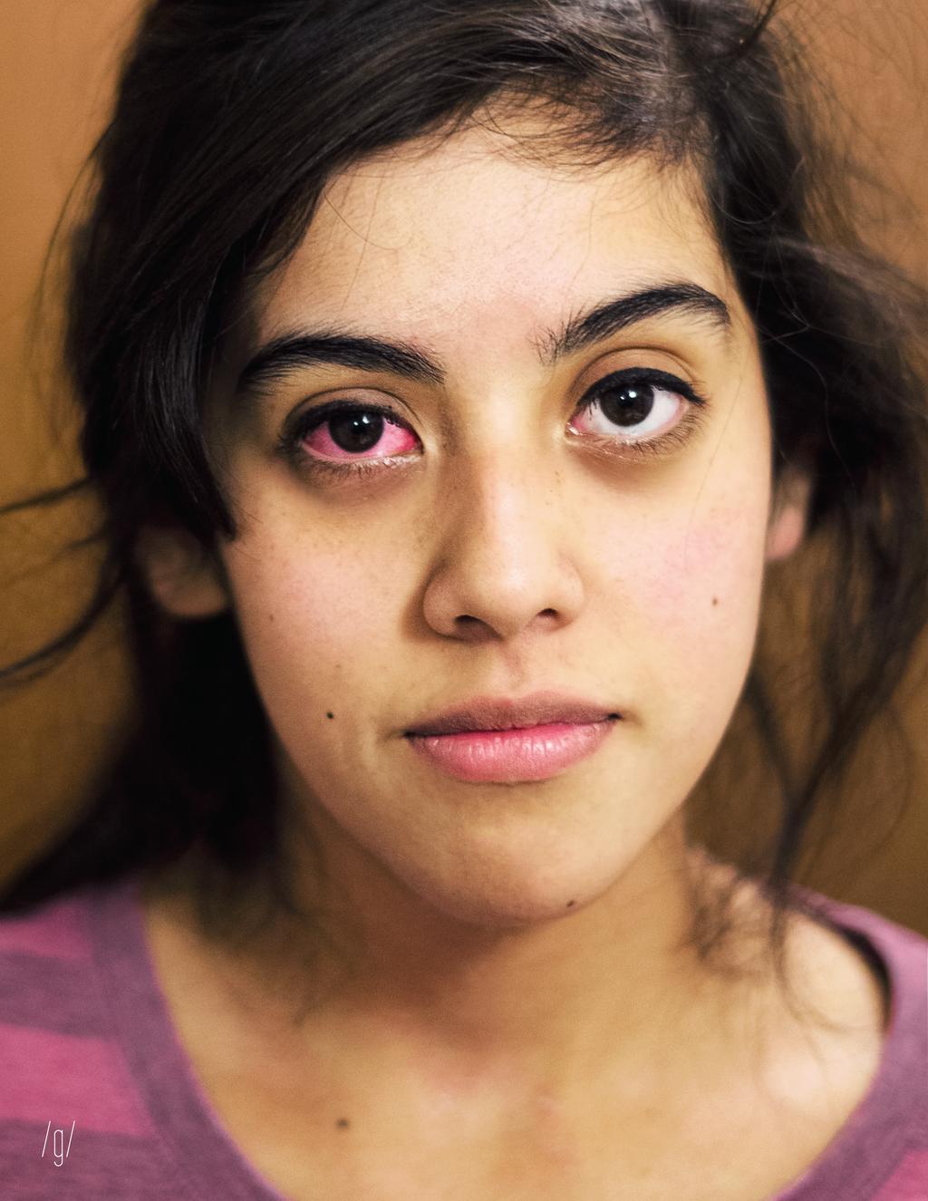 conjunctiva heterochromia by tnargrant