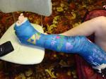 Marina's Leg Cast