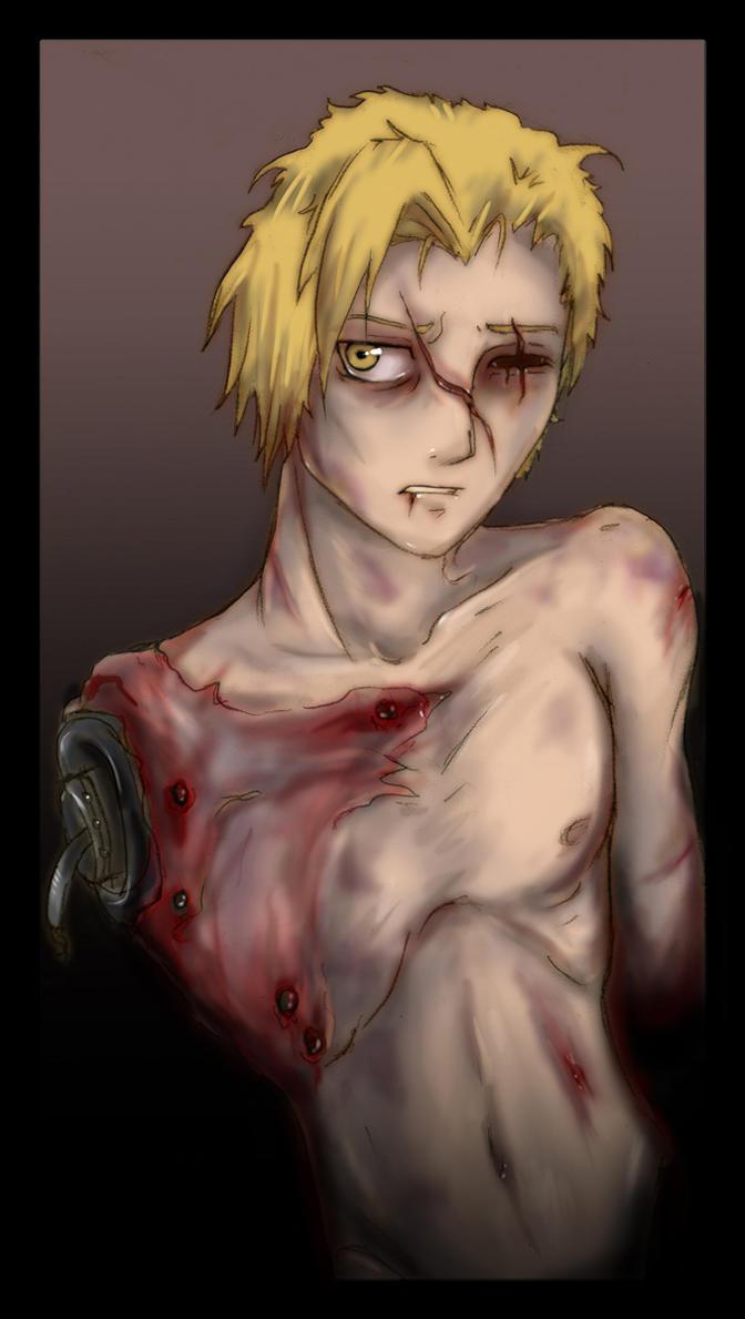 Broken Edward by ChildOfPuck
