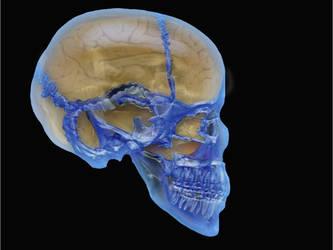 glass skull by ronmatt