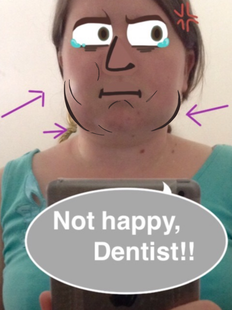 wisdom teeth aftermath by macmacaroni on deviantart