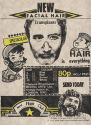 Facial Hair Transplants by Golland