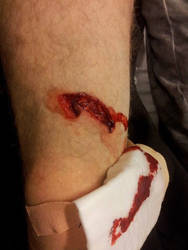 Angle grinder accident