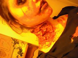 zombie neck by Reenigrl