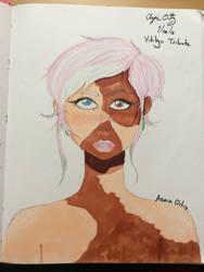 Vitiligo by Starboltz1