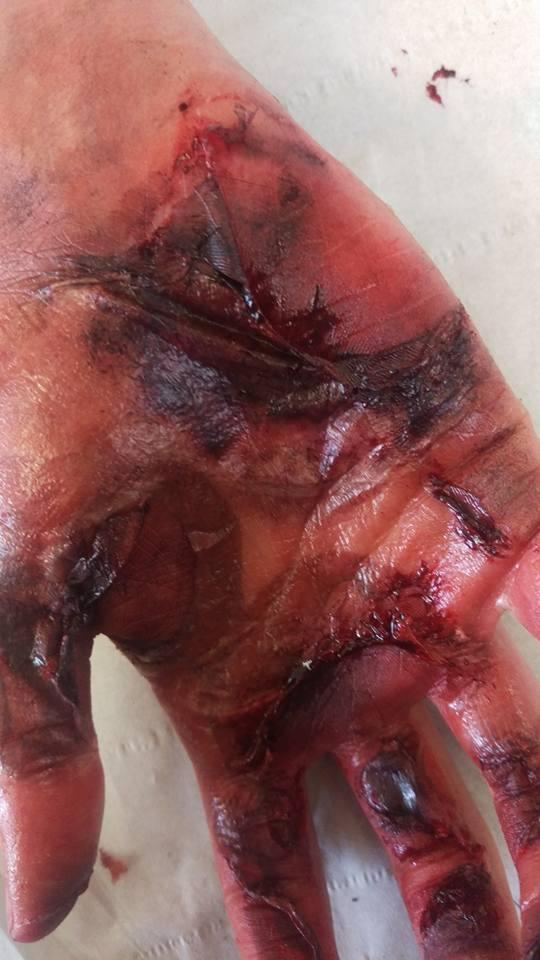 Third degree burn hand