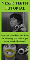 Veser Teeth Tutorial