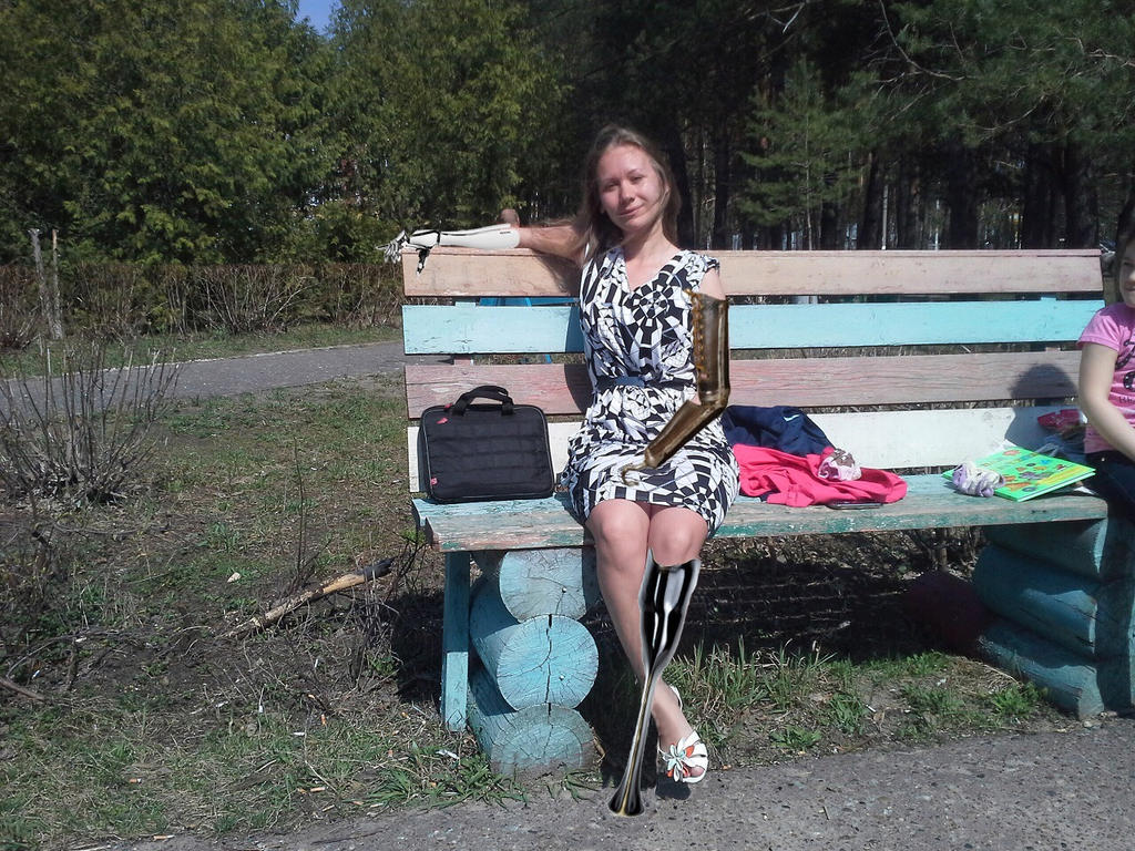 Russian amputee dating