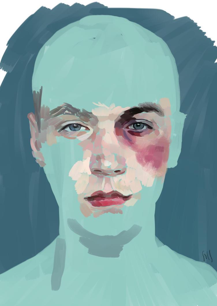 Bruised by SariSariola