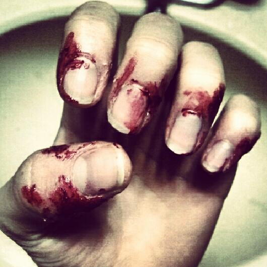 how to stop picking skin around my nails