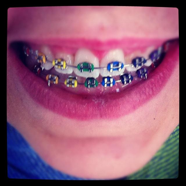Braces Colors Ideas For Boys My rainbow braces by D...
