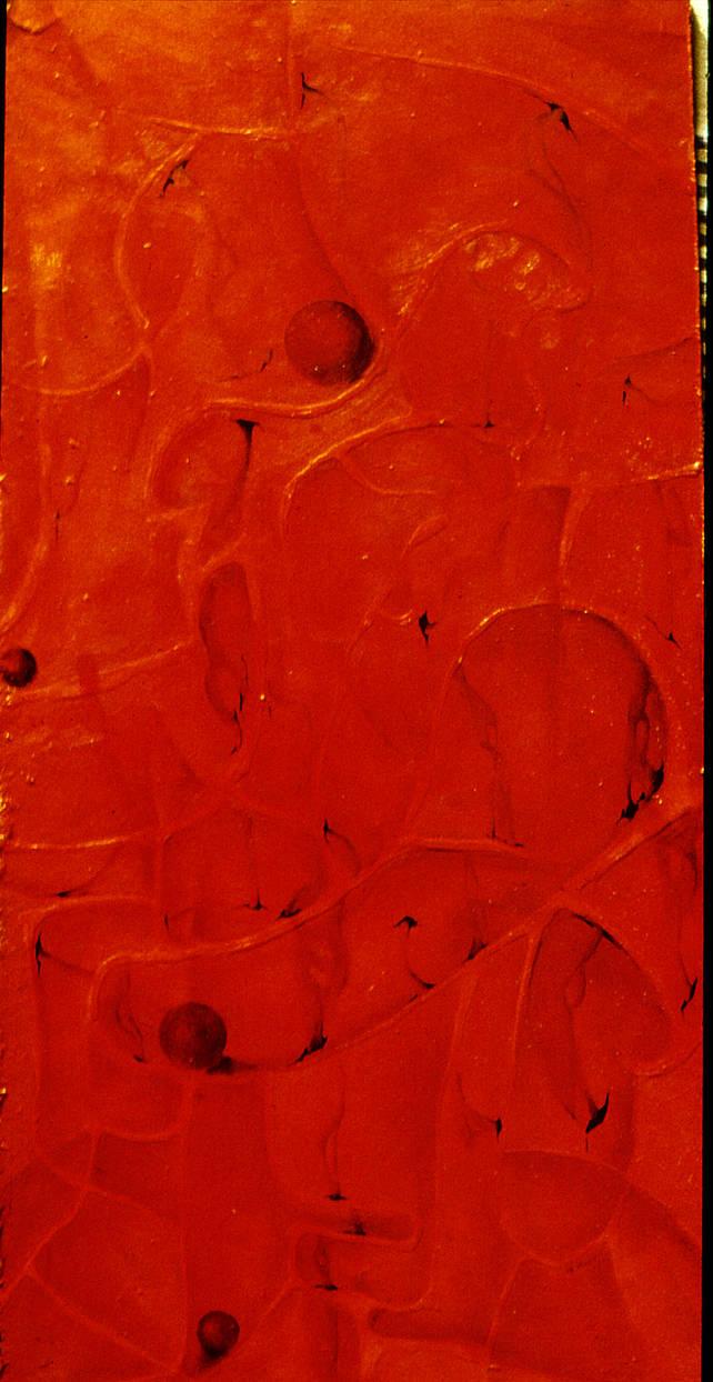 Cross-section of uterus by krtnik
