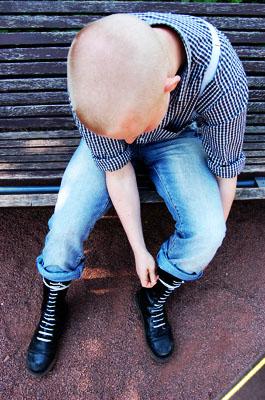 Skinhead.3 by ReneeMaus