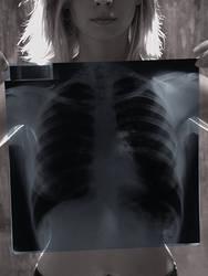 X-Ray 01