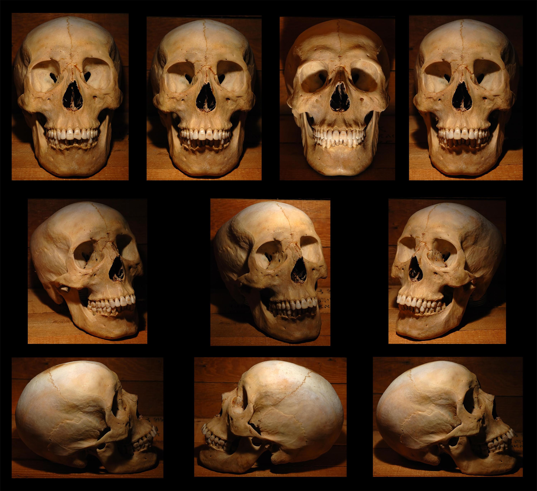 Via spanish conquistador human skull with broad ax trauma skull homo