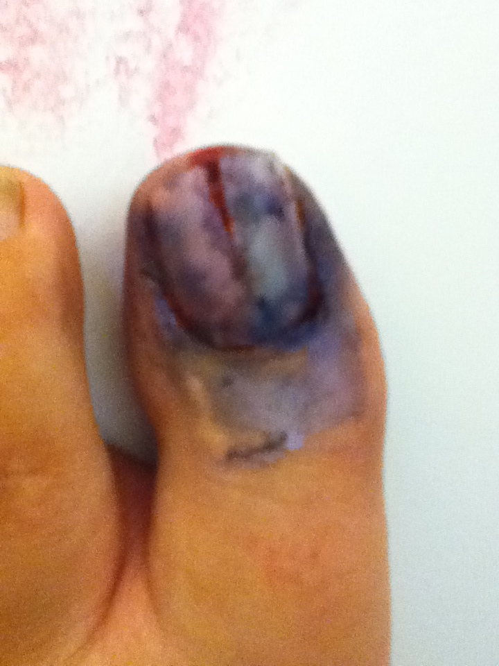 Split toenail by badC4T on DeviantArt