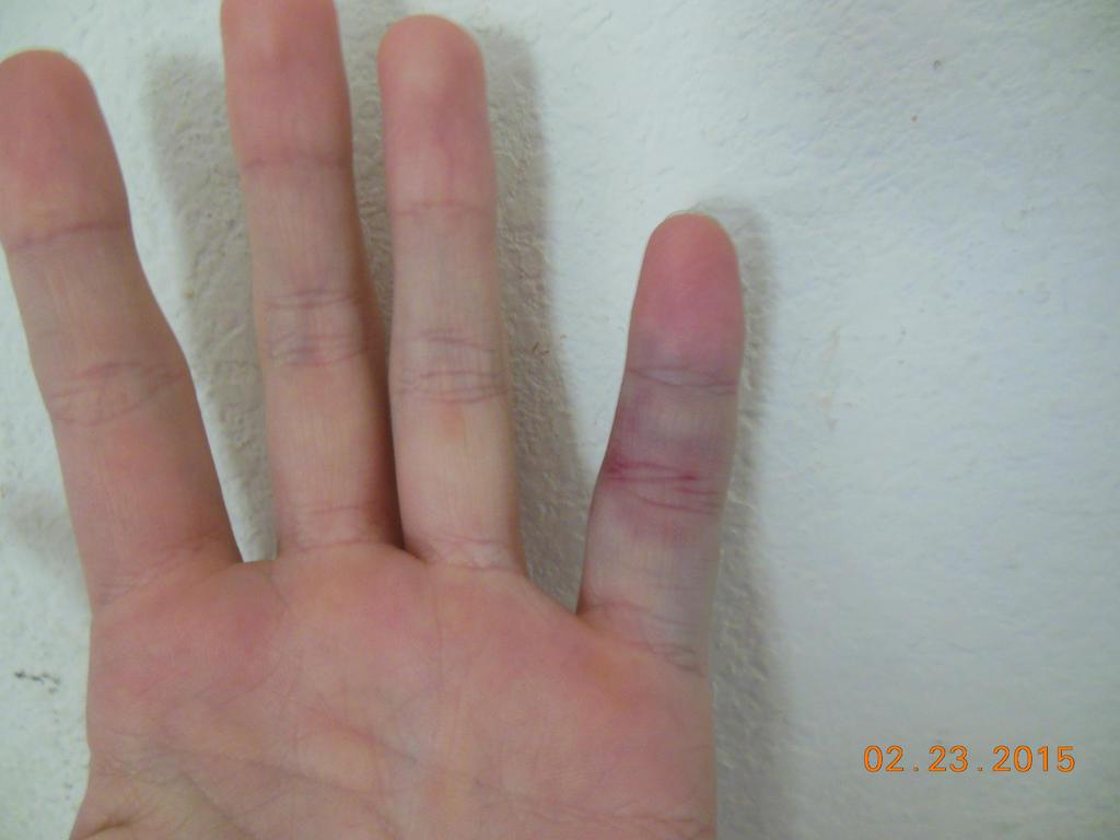 Jammed finger close up. by Tsuya-hasu on DeviantArt