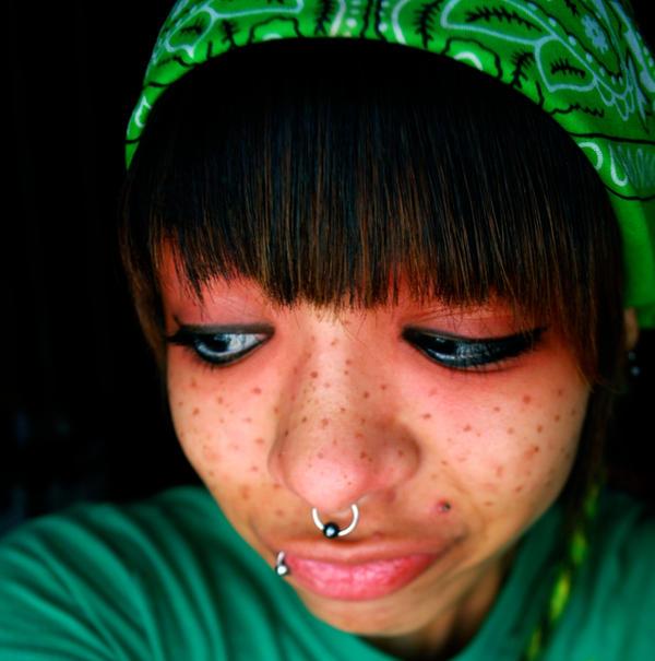 freckles_by_tasMEGAPLEX