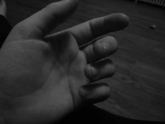 My Hand?