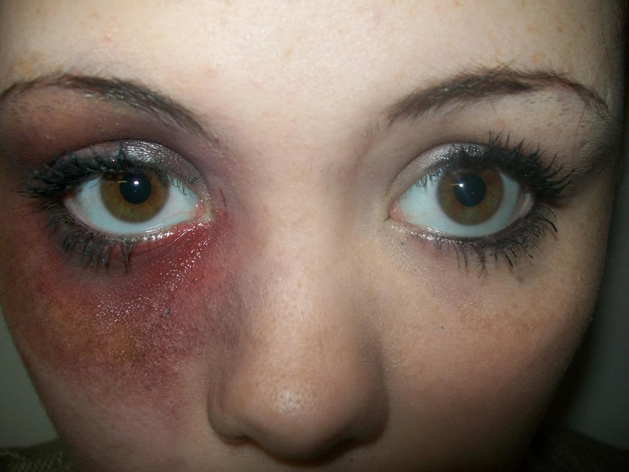 Makeup Ideas bruise makeup : Basic Bruised Eye Makeup by SamacloSFX on DeviantArt