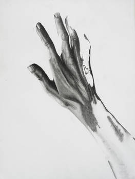 Hand and pain