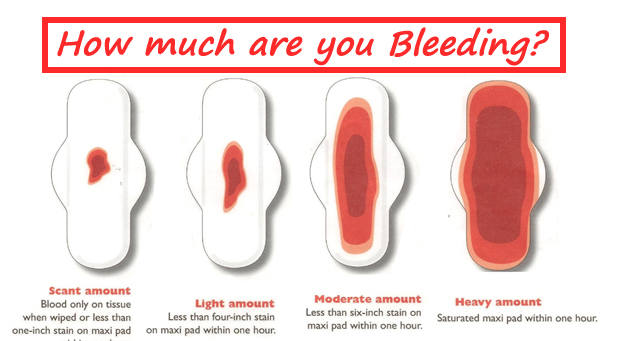 ... Prettyblood14 Menorrhagia Blood Clots Continuous Menstrual Bleed By  Prettyblood14 ...