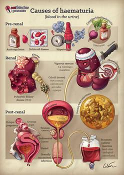 Causes of haematuria (peeing blood)