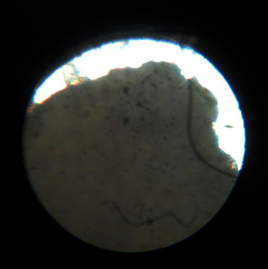blackhead under microscope 1 by pr0teusunbound on deviantart