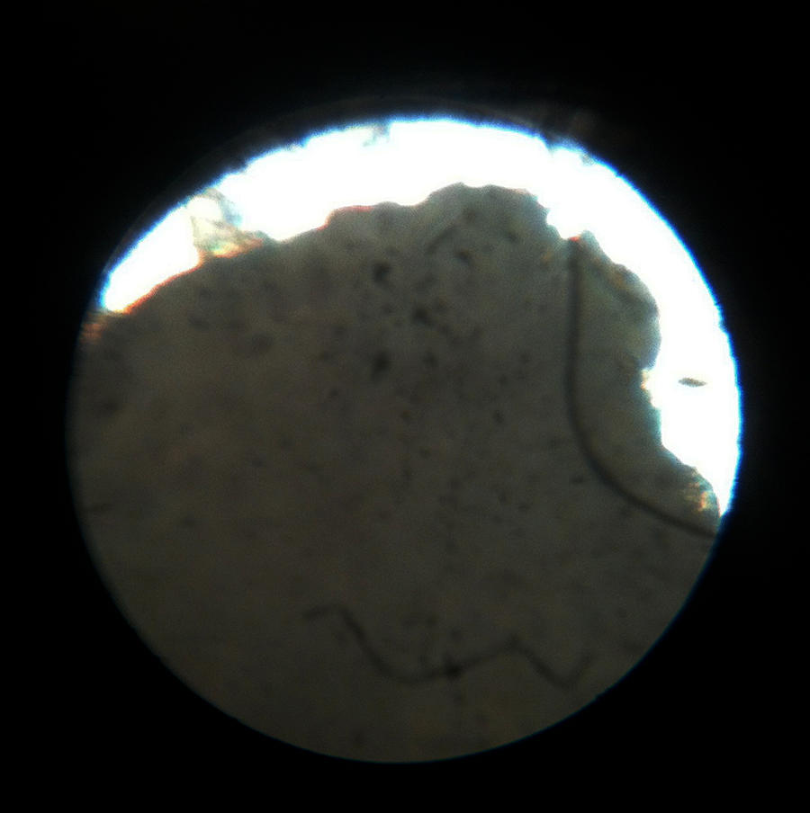 blackhead under microscope 1 by pr0teusunbound on deviantart