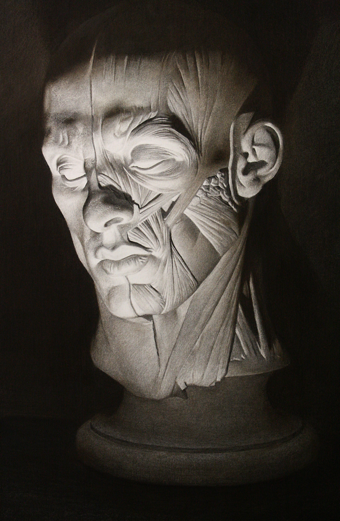 Cast- Half flayed man by Miles-Johnston