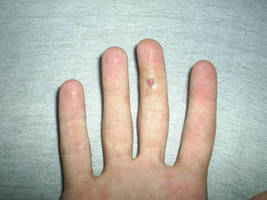hurted finger by Drayo