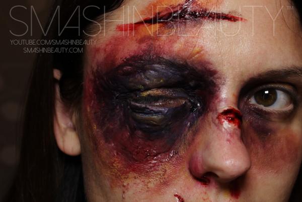 Swollen Black Eye SFX Makeup Tutorial by smashinbeauty