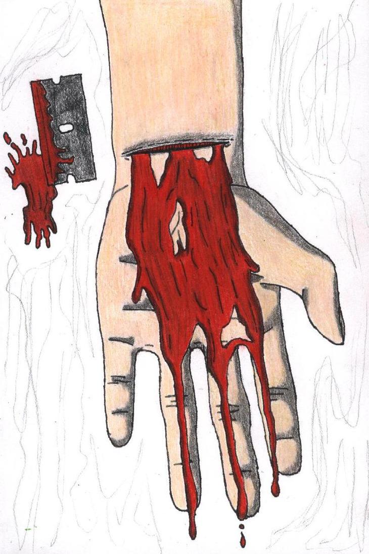 bleeding wrist drawing - HD801×1201
