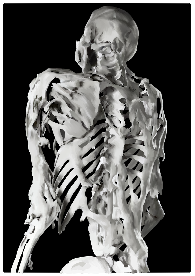 the cause effects and treatments of fibrodysplasia ossificans progressiva Fibrodysplasia ossificans progressiva (fop) should be diagnosed during the neonatal period [] early treatment of fibrodysplasia ossificans progressiva helps avoid the factors of.