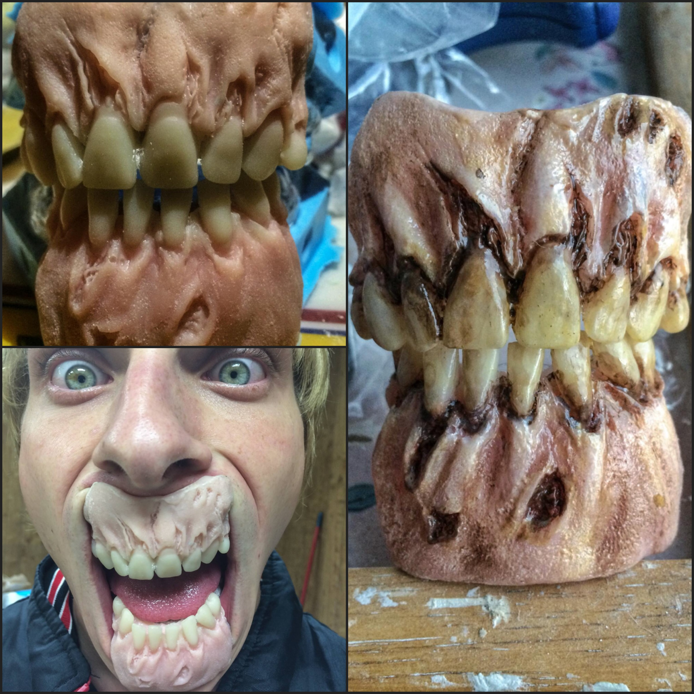 Rot Jaw Dentures By