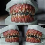 Smooth Face Dentures