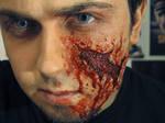 Torn Skin
