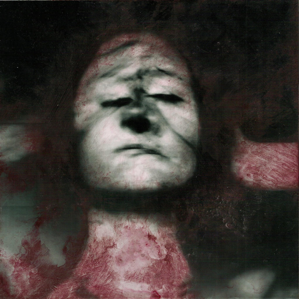 Deformotherapy by apiarona