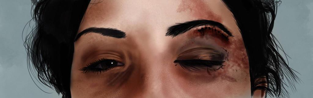 Black Eye by thewalkingman