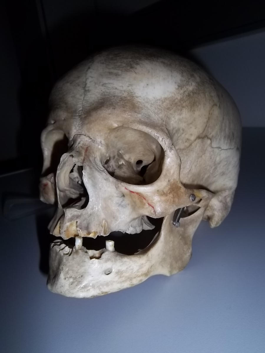 Real Human Skull Black And White