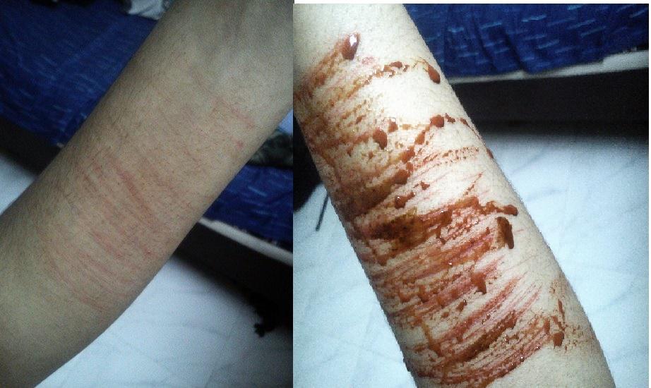 Self-Harm make up test by floriyon