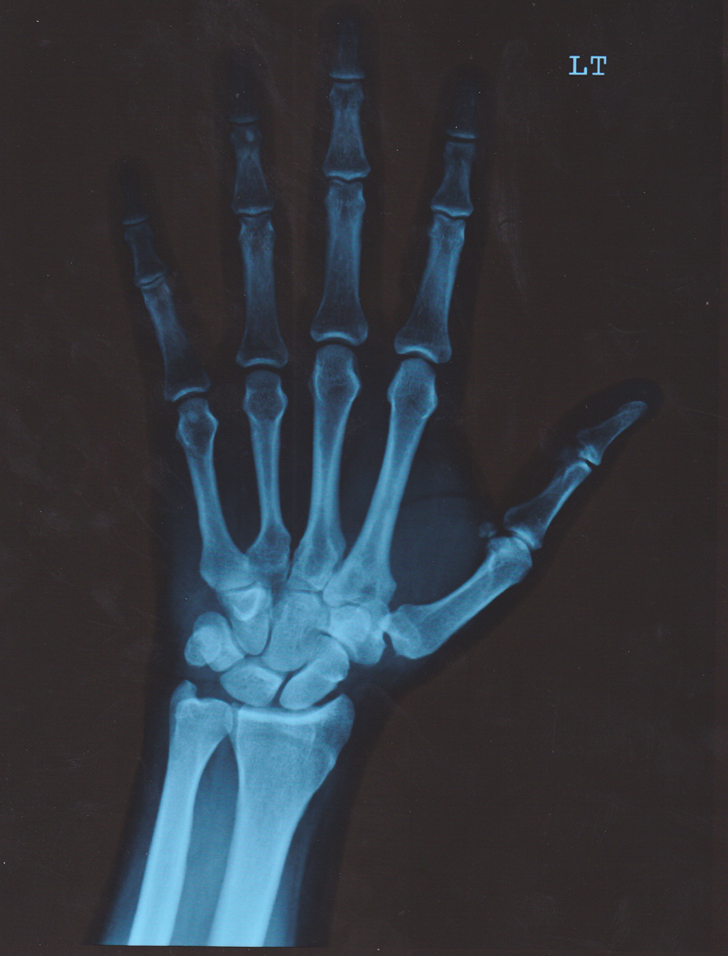 Pa Hand X Ray By Agp12 On Deviantart Skeleton illustration, prayer human skeleton anatomy, skeleton, skull and, hand, monochrome png. deviantart