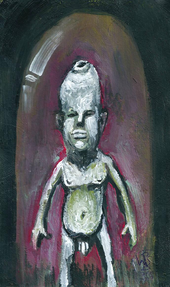 Albino with phimosis by nekrotherium