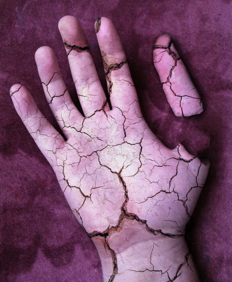 My Hand - Cracked And Broken