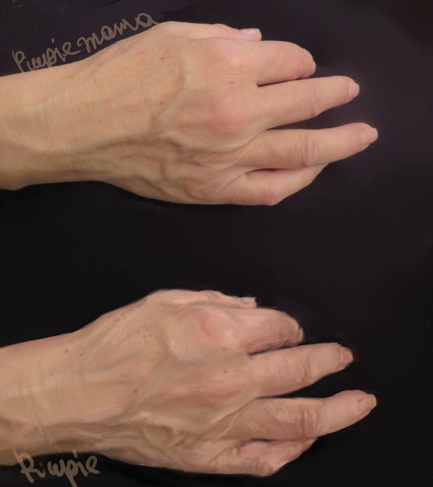 Practice moms hands by PIUPie