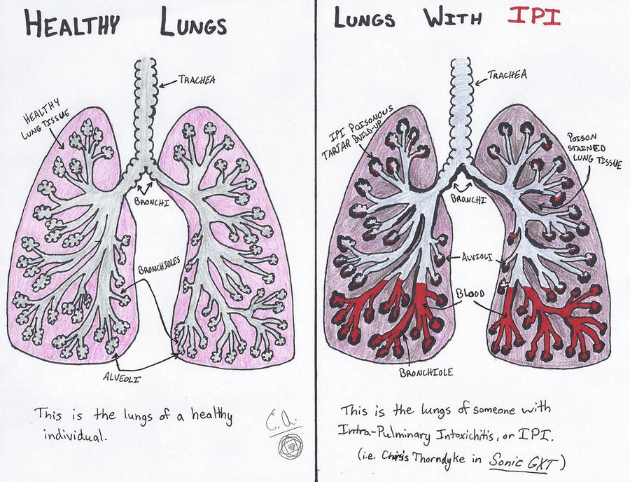 Healthy lungs vs ipi infected lungs comparison by ceraisian healthy lungs vs ipi infected lungs comparison by ceraisian alchemist ccuart Choice Image