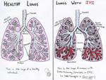 Healthy Lungs vs. IPI Infected Lungs Comparison